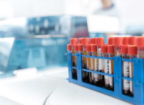 Collection of vials containing blood for testing